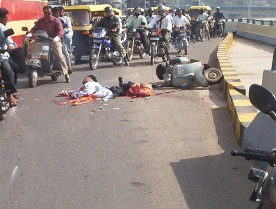 Gory Pictures of Accident Victims http://balajoe27.wordpress.com/2011/08/08/skinning-them-alive/